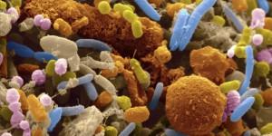 Лошите бактерии се размножават в среда от нездрави тъкани и клетки