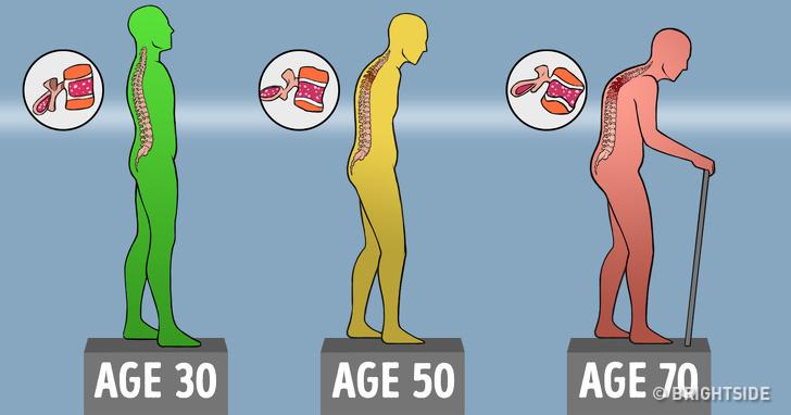 Как да поддържаме костите си здрави с напредването на възрастта